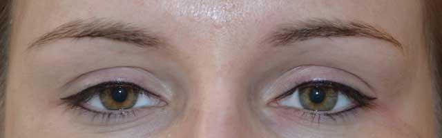 Makijaż Permanentny Oczu Koszalin Instytut Kosmetologii I Medycyny