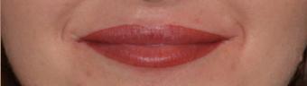 Makijaż permanentny ust - powiększanie ust koszalin