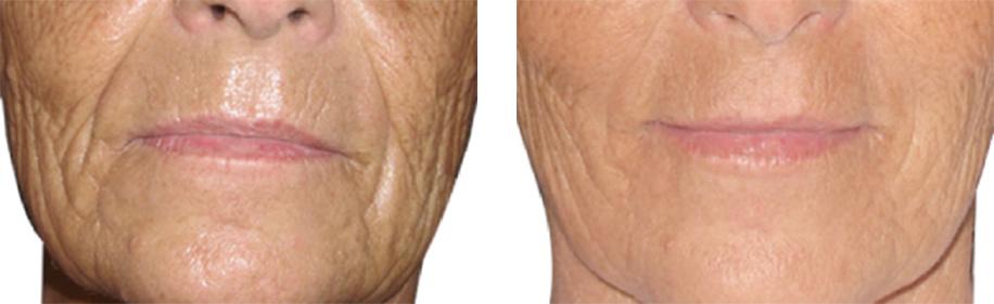 efekty zabiegu jalupro bruzdy nosowe