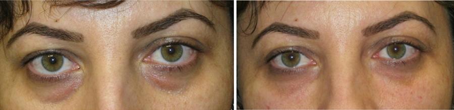 efekty zabiegu jalupro oczy