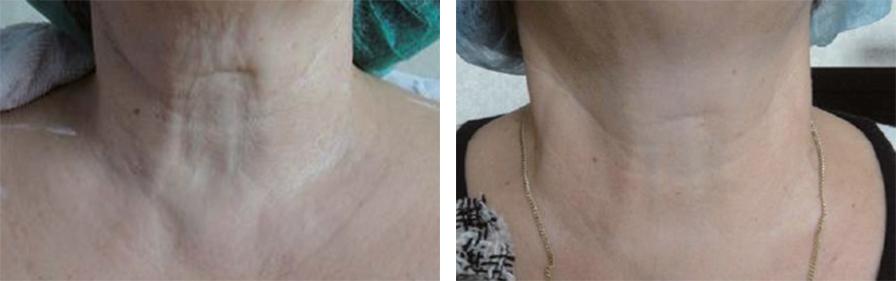efekty zabiegu jalupro szyja