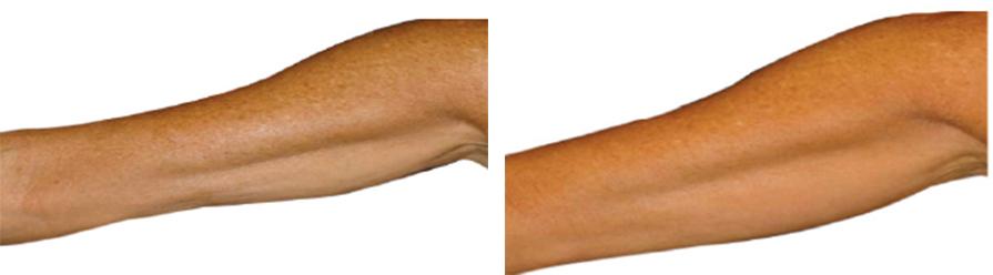efekty zabiegu jalupro wiotkość ramion