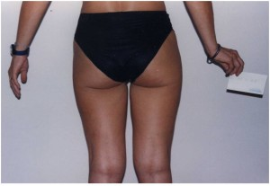 Karboksyterapia C.D.T. Evolution - usunięcie cellulitu, tkanki tłuszczowej oraz wiotkości