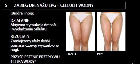 endermologia lpg