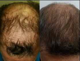 leczenie łysienia koszalin