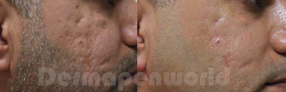 Efekty zabiegów dermapen 4