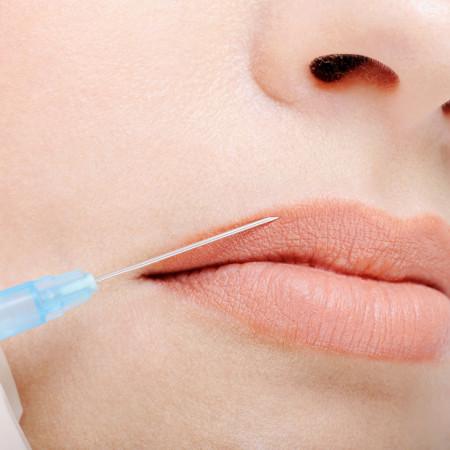 zabiegi powiększania i modelowania ust