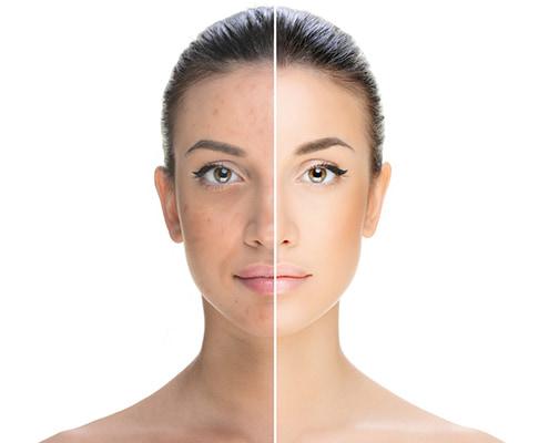 laserowe leczenie trądziku - laser frakcyjny alma harmony pro, gŁowica acne pro -